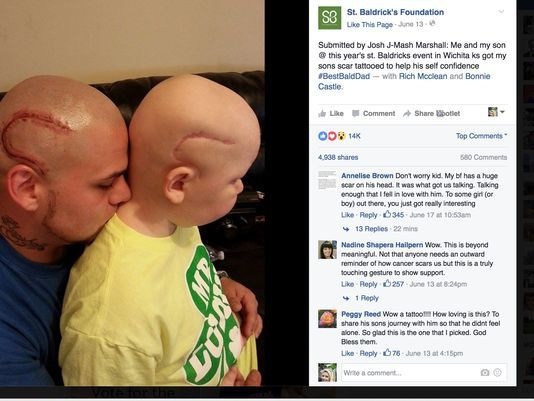 """b74dfcbb2 The father of a Kansas boy who was left with a scar on his head after brain  surgery, got a matching scar tattoo so his child wouldn't feel like """"a  monster."""