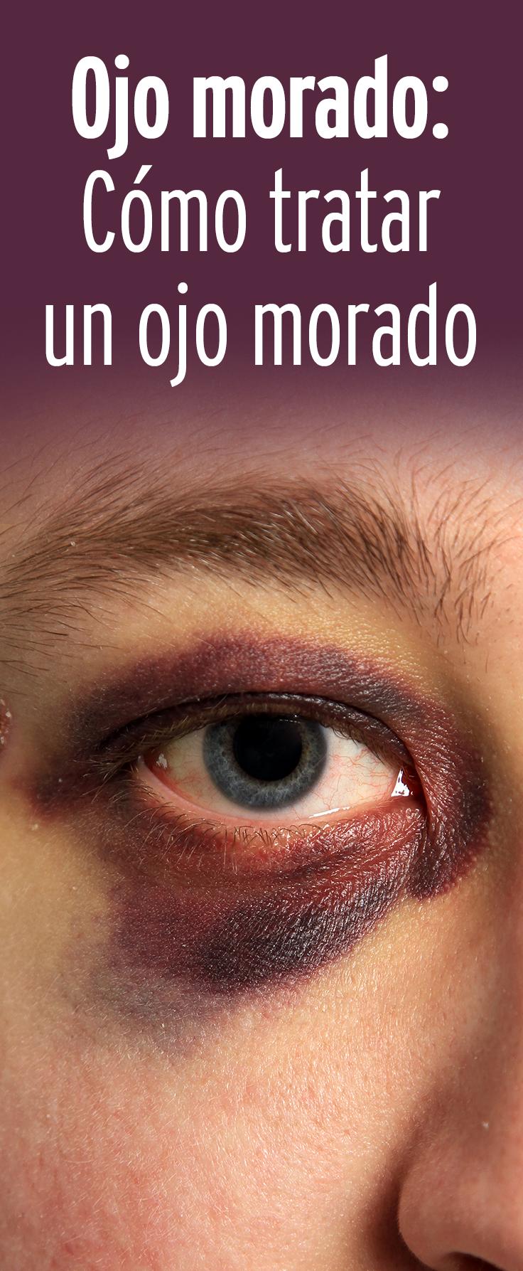 reducir hematoma ojo