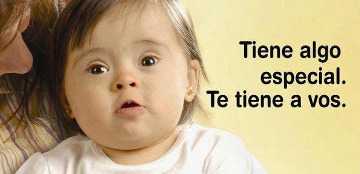 21 De Marzo Día Mundial Del Síndrome De Down Bebé Con Síndrome De Down Síndrome De Down Día Mundial