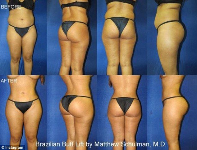 Plastic surgeon's pictures of Brazilian butt lifts get cult