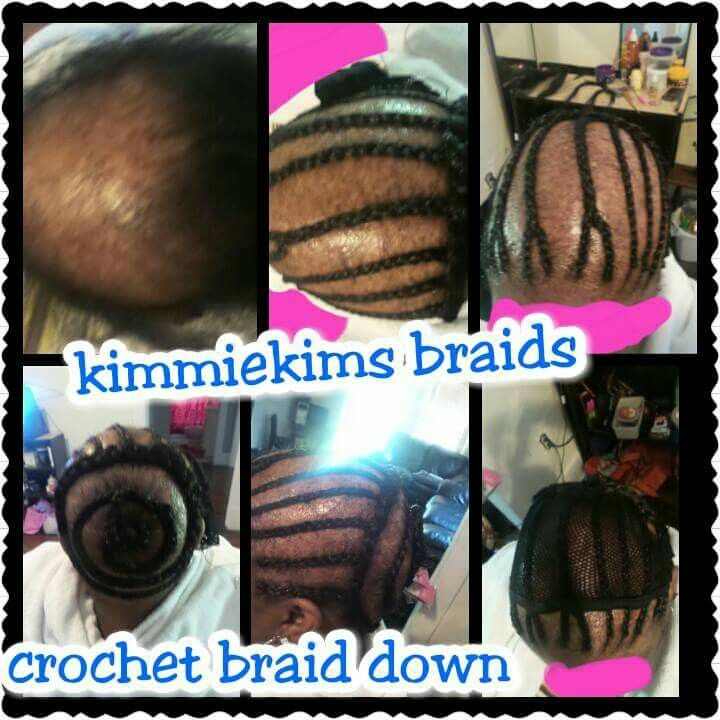 Braid Down For Crochet Install On A Guest With Alopecia