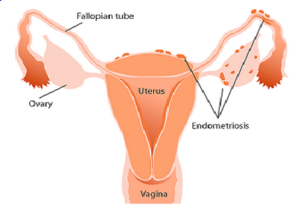 Once you start puberty a white and/or clear discharge is normal. The vagina is self-cleaning. For More Update about Brown Discharge Visit:- http://www.women-info.com/en/brown-discharge