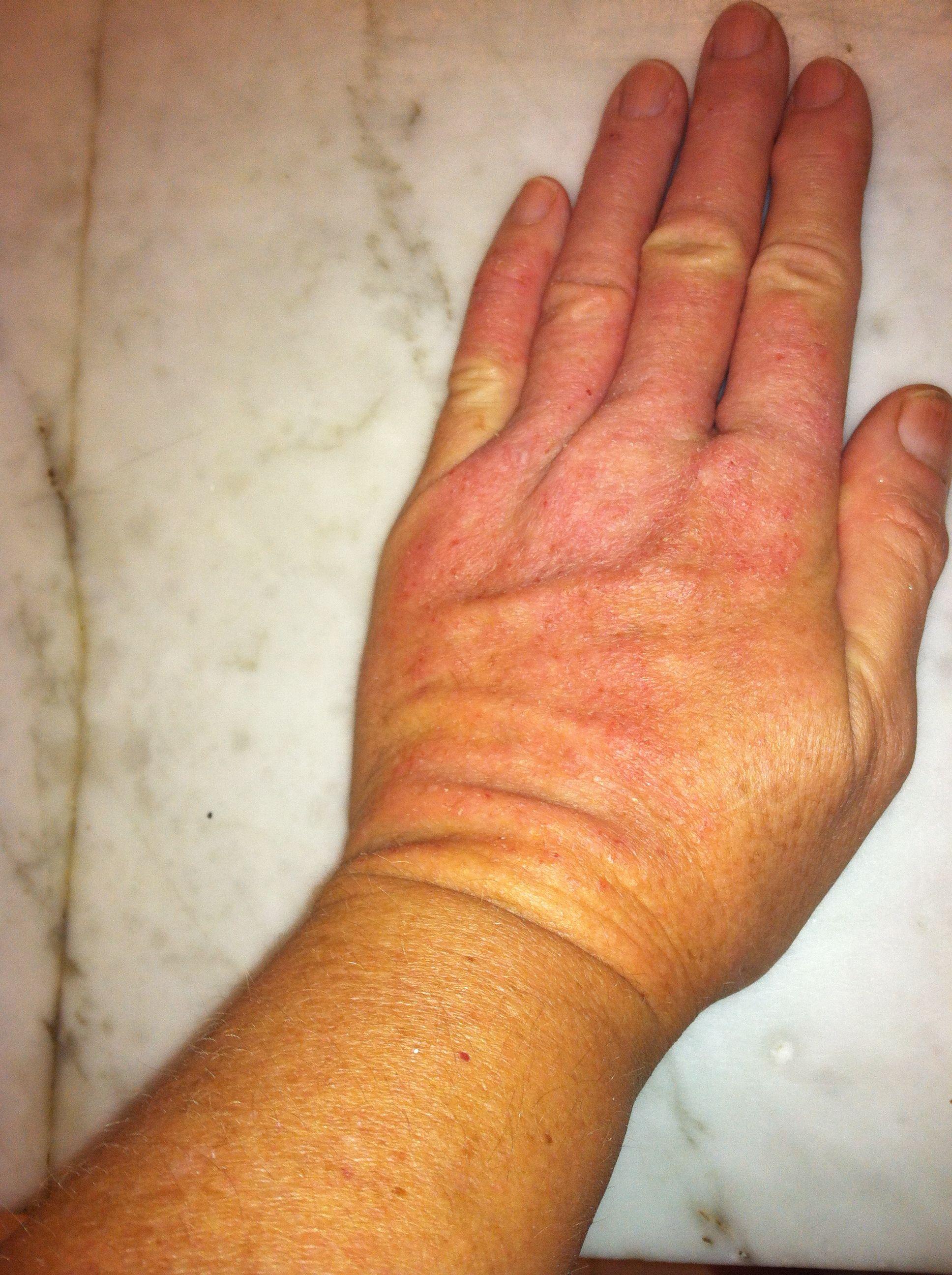 Pin on Dermato- myositis
