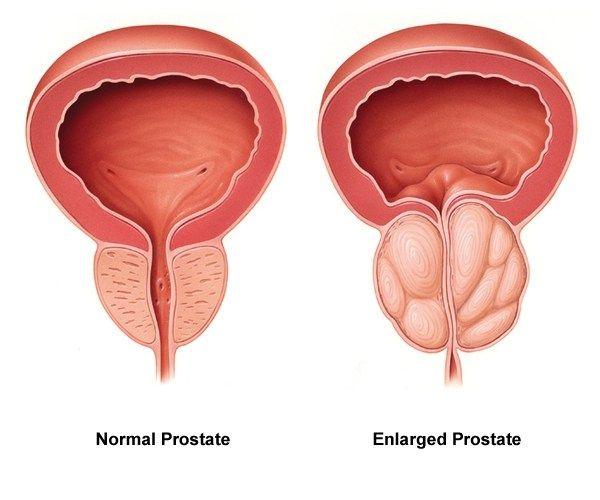 chronische prostatitis alkohol behandeling.jpg