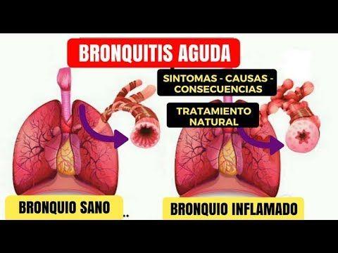 síntomas de prostatitis crónica y curarlo