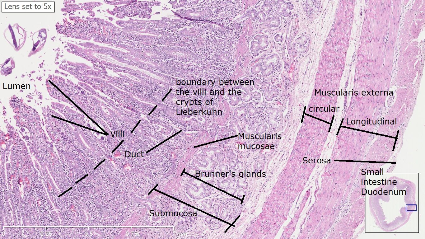 duodenum histology - Google Search | Medical student ...