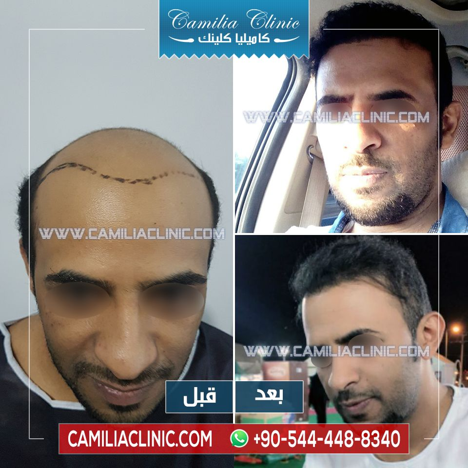 Hair Transplant In Turkey Beforeafter Camilia Clinic Implanted Grafts 7000 One Session Using Percutan Technique زراع Hair Transplant Hair Transplant