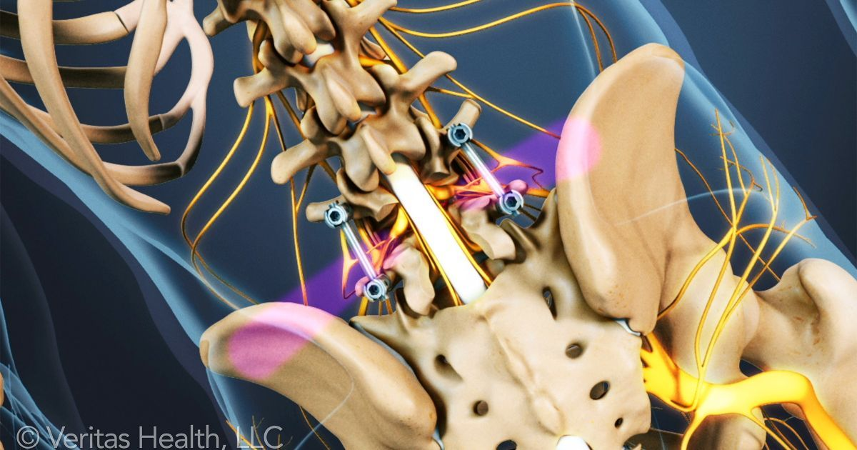 Postoperative Care for Spinal Fusion Surgery | My Back Board
