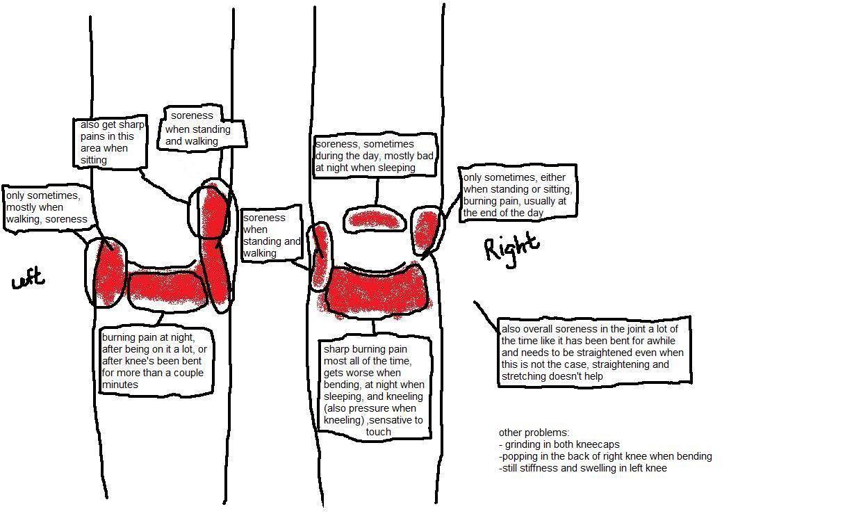 knee pain diagram re medial plica excision still pain. Black Bedroom Furniture Sets. Home Design Ideas