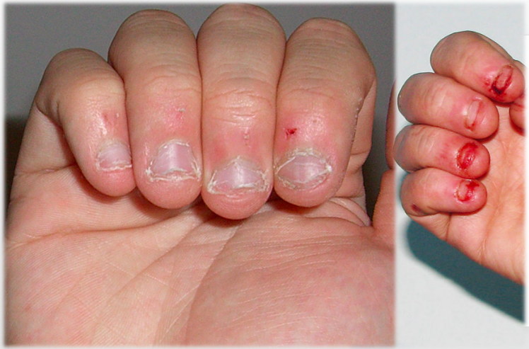 Nail-biting is a common habit that can cause a lot of ...