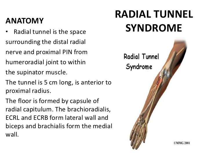 radial tunnel syndrome splint - Google Search | OT information ...