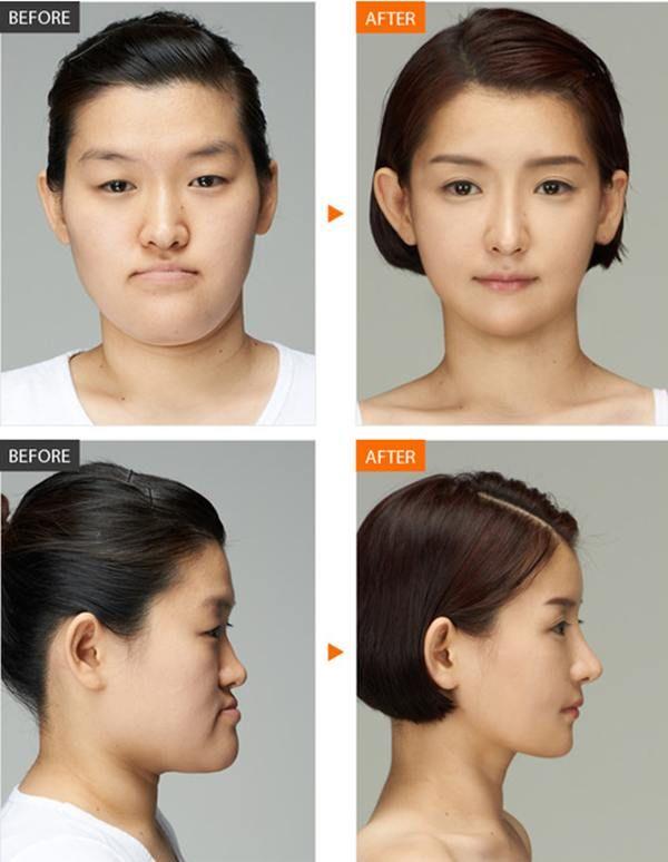 Amazeball Korean Plastic Surgery Before After