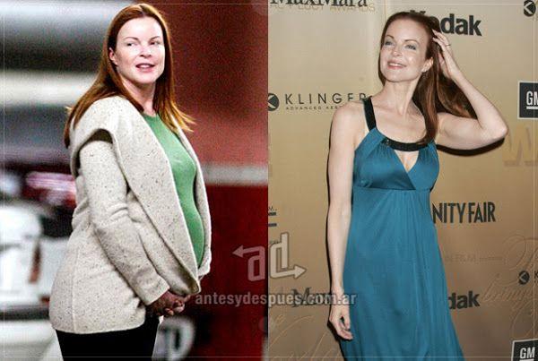 Antes y despues de bajar de peso famosas embarazadas