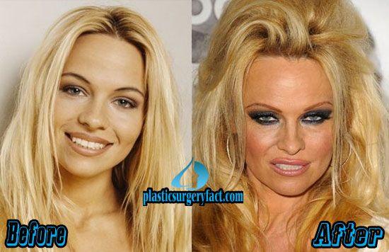 Celebrities Who Denied Plastic Surgery Rumors - people.com