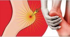 Si te duele el talón al despertar o sin estar parado mucho tiempo, le está pasando esto a tu cuerpo.