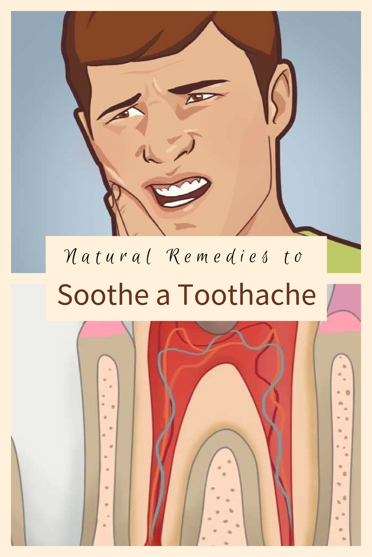 Natural remedies to soothe a toothache  Level Thrive  Pinterest