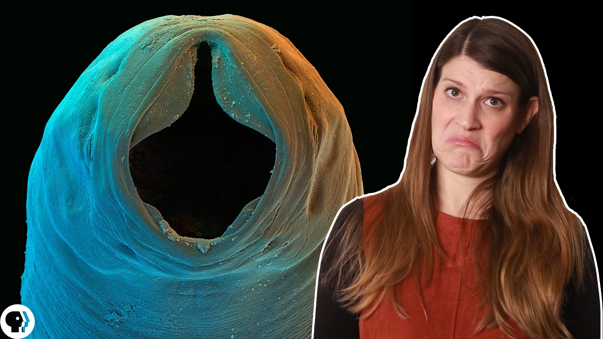 """Hookworms and the Myth of the """"Lazy Southerner"""""""