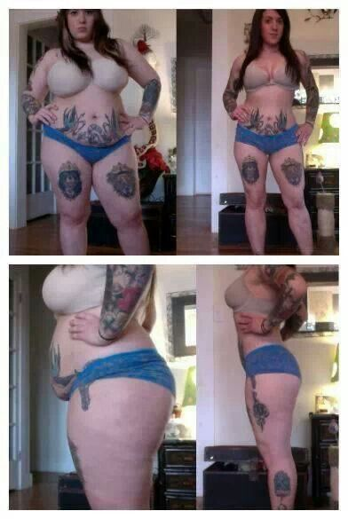 stretch marks before and after weight loss – Google Search #PreventingStretchMar…