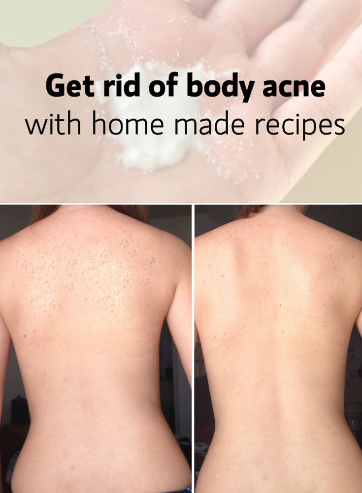 Body Acne And Treatments Body Acne Body Acne Remedies Body
