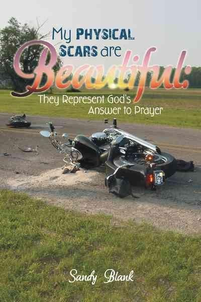 My Physical Scars Are Beautiful:: They Represent God's Answer to Prayer