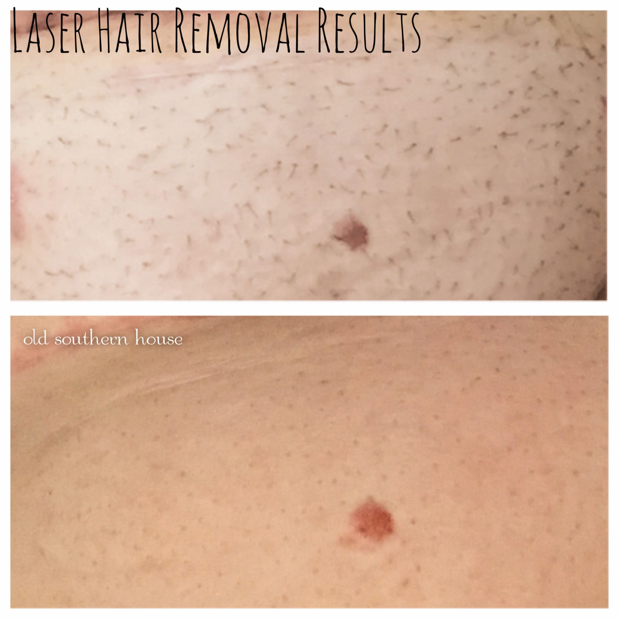 Pin On Remove Public Hair