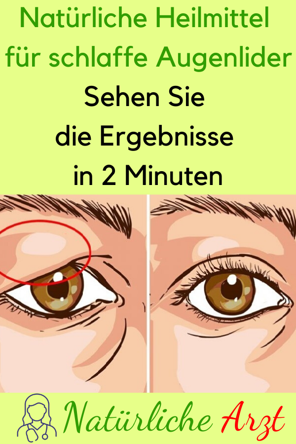 Photo of Natural Remedies For Sagging Eyelids – See The …