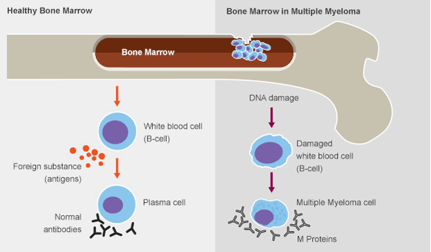 Multiple myeloma is a cancer of plasma cells a type of white blood multiple myeloma is a cancer of plasma cells a type of white blood cell normally responsible for producing antibodies publicscrutiny Gallery