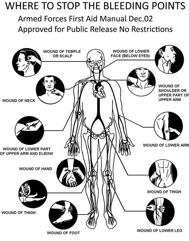 Where to put pressure to slow the bleeding. From the Armed