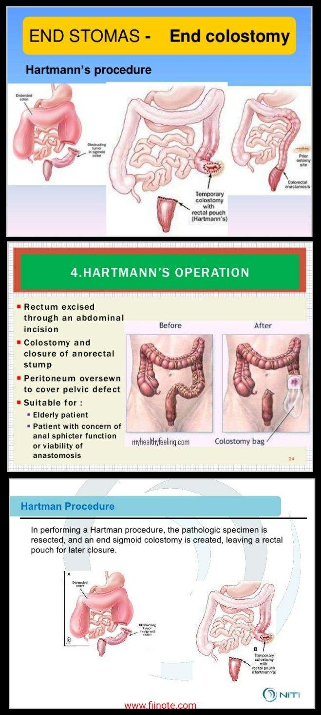 rectal cancer hartmann s procedure)