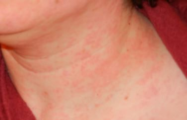 Hives on neck may be from kissing | Rash on neck, Heat ...