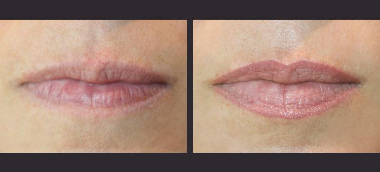 Image result for permanent lip liner before and after