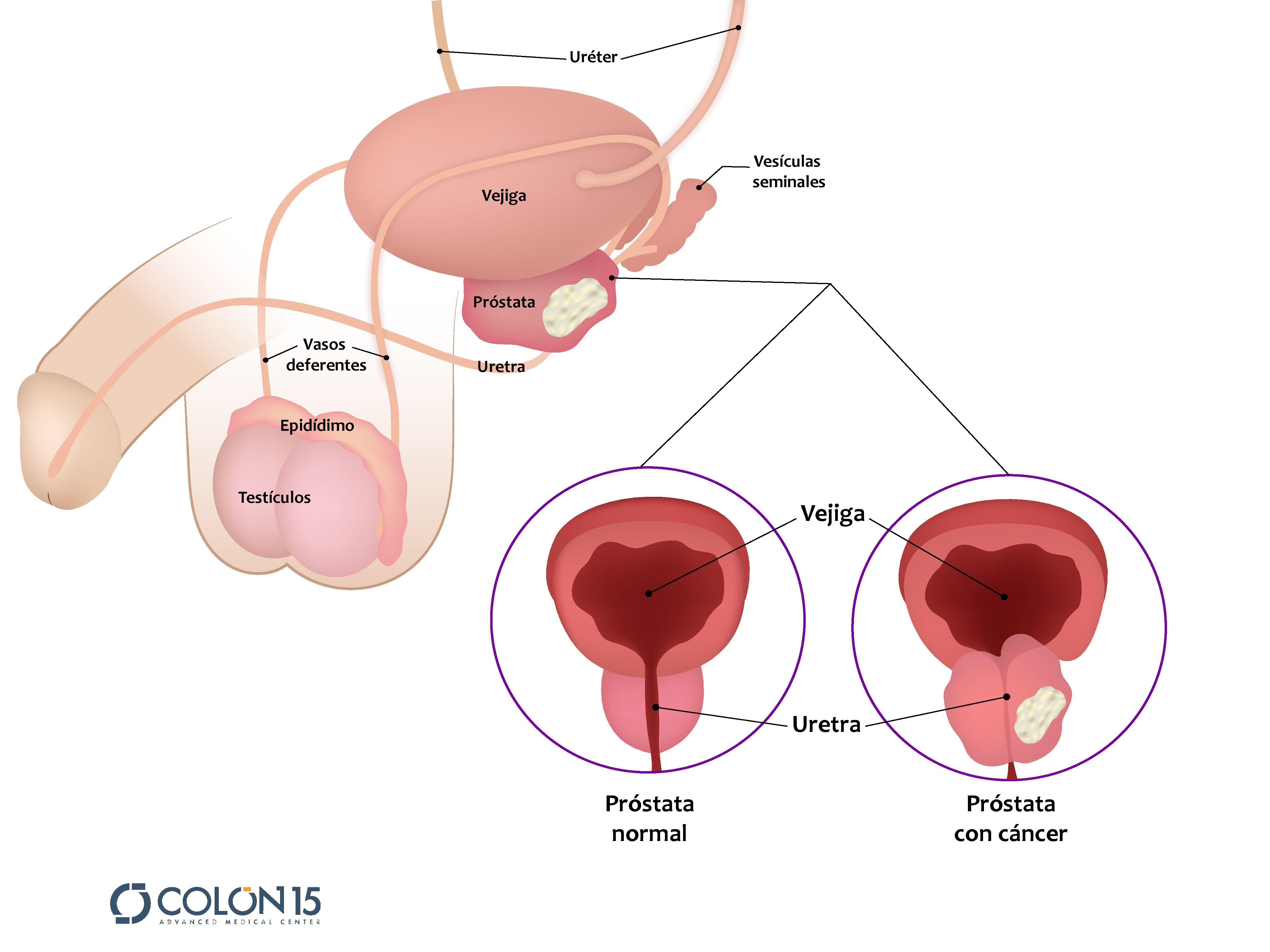 métodos de estrechamiento de próstata