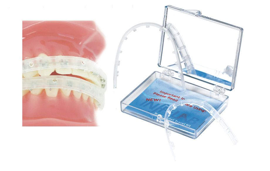 Lip Protector for Dental Braces (With images) Dental