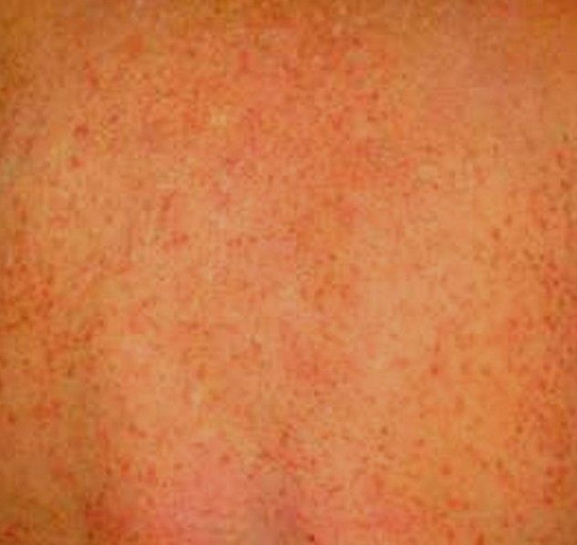 Chlorine Rash Pictures And Remedies Helpful Pinterest