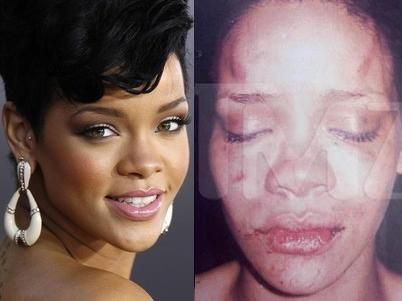 In 2009 Chris Brown had abused his girlfriend at the time, Rihanna. Detectives say Chris pushed her head against the window and continued punching her while driving. Chris' behaviour could be explained by nature debate: his amygdala (part of our brain shown to be the area that controls aggression) could possibly be smaller than other people's which is why he has less control of his aggression. The nurture debate could also explain his behaviour because of the domestic violence in his past…