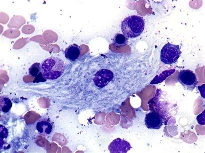Gaucher S Disease Aspirate 2 Gaucher S Disease Hematology Medical Laboratory Science