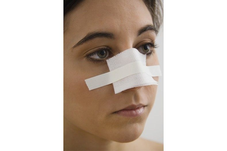 nose surgery near me cost