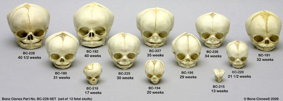 Found on Google from aspergerhuman.wordpress.com | Baby Anatomy ...