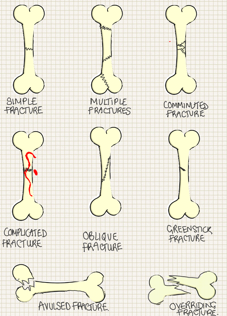 a place to find hints tips and ask questions types of fracture