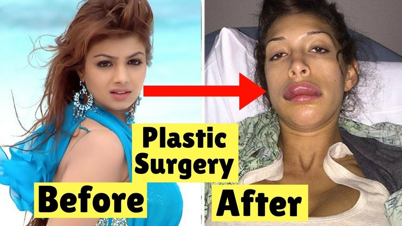 top 8 bollywood actresses looks horrible after plastic surgery 2018