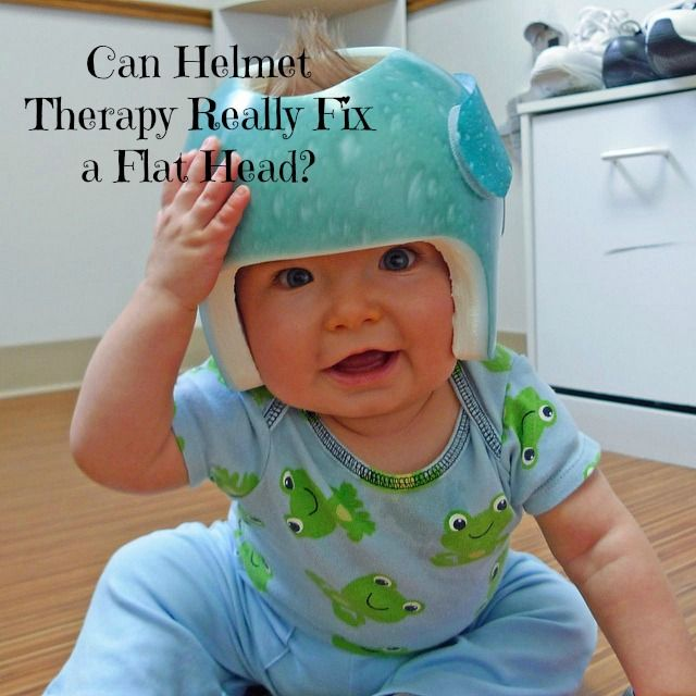 Cranial Helmet Therapy For Babies Can It Really Fix A Flat Head Baby Helmet Flat Head Baby Baby Pooping