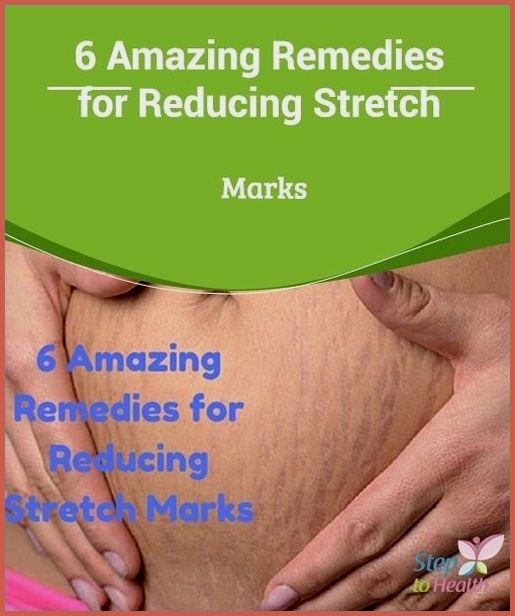 Remove Stretch Marks Fast With These 6 Natural Rem