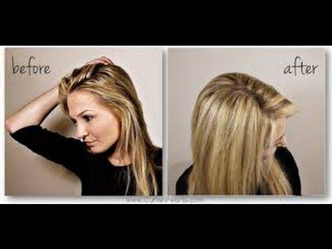 Perte de cheveux femme cheveux gras