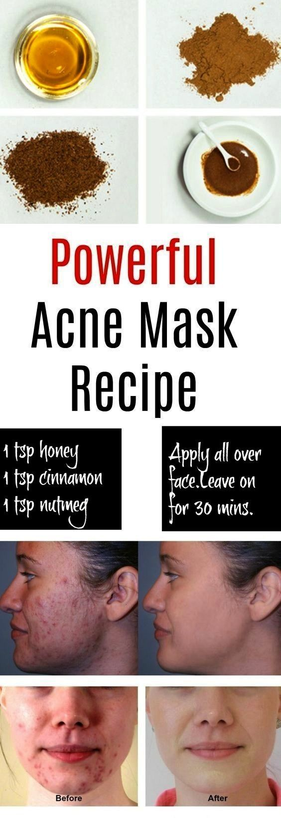 Remedies for Pimples and Blackheads for Oily Skin  best home for acne overnight  homemade acne mask  how to get rid of pimples and blackheads overnight skincareHome Remed...