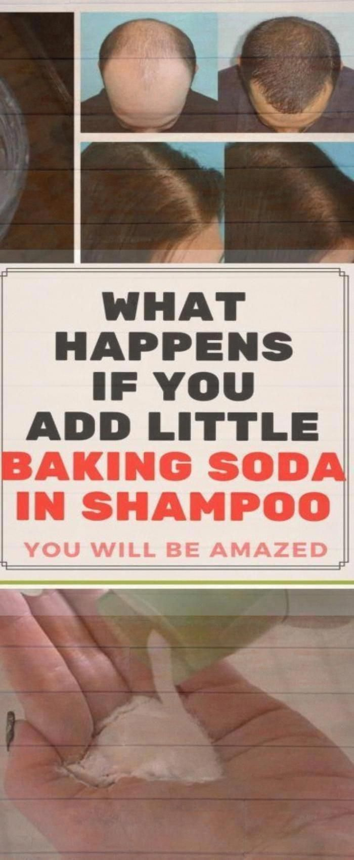 What Happens If You Add Little Baking Soda In Shampoo, You Will Be Amazed #health #fitness.. #baking...