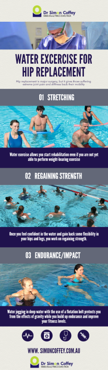 3 Best Water Excercise For Hip Replacement Surgery