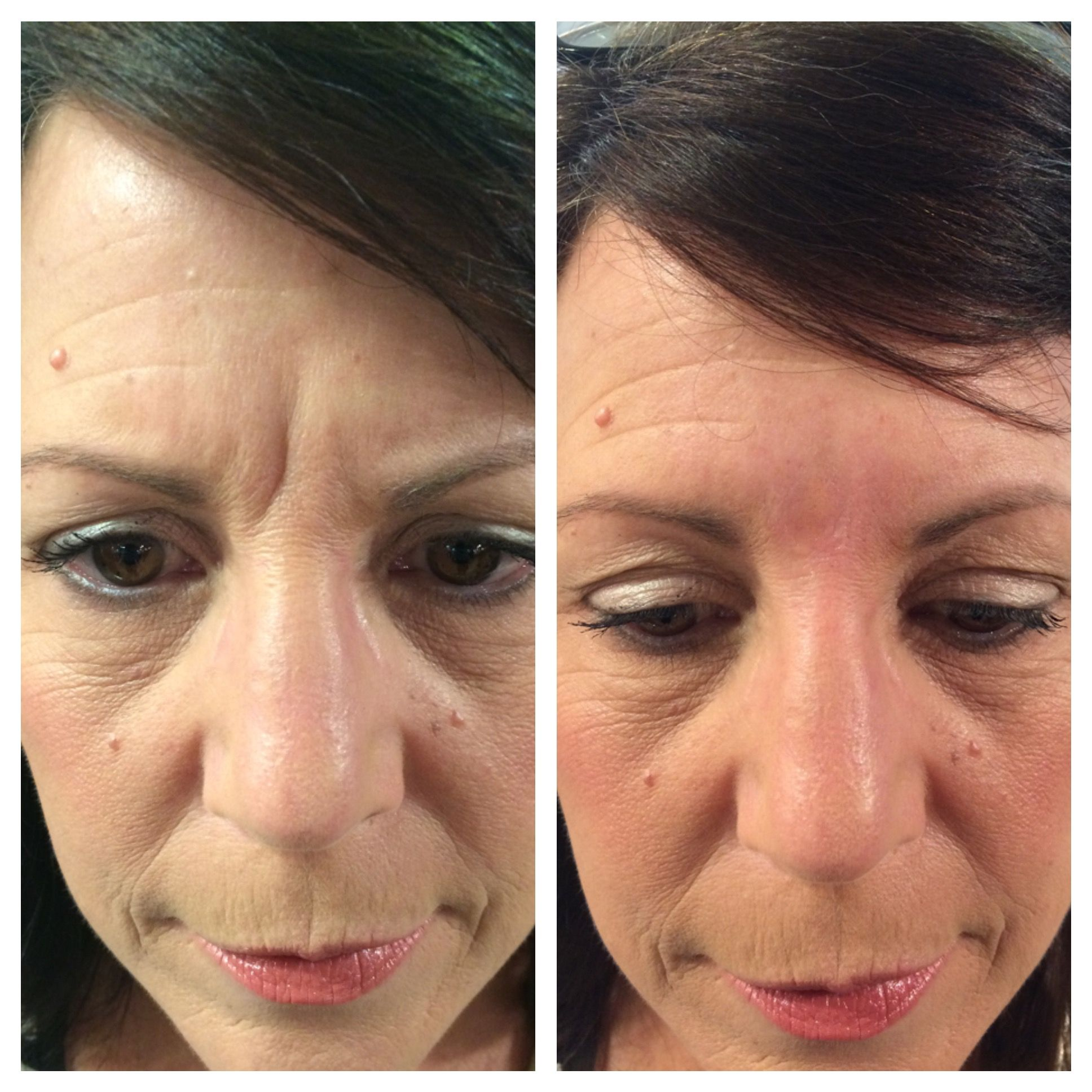 Scar & Wrinkle Filler Scar makeup, Beauty skin, Wrinkle