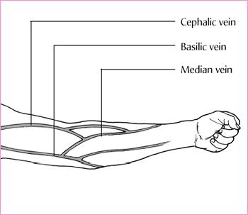 metacarpal cephalic basilic | metacarpal plexus dorsal venous arch, Cephalic Vein