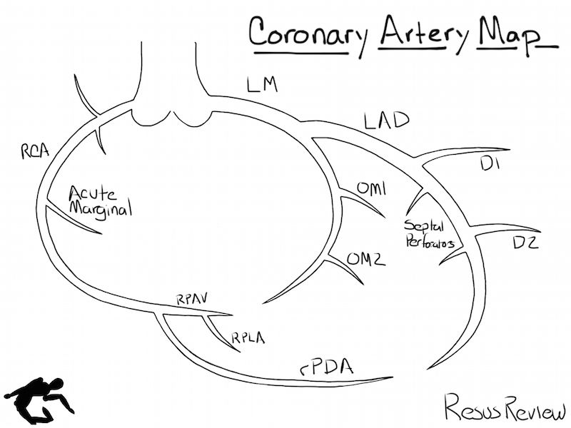 Defining the coronary artery anatomy is a critical step in any ...
