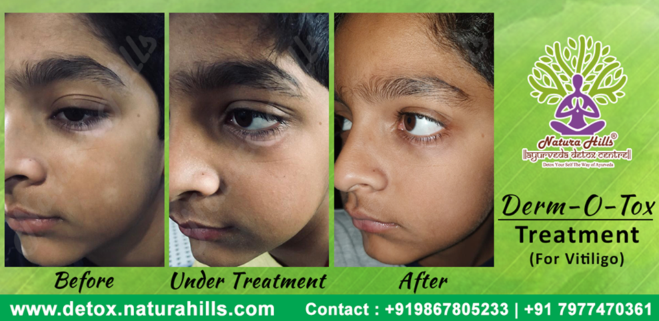 Derm-O-Tox Treatment to Rid of Vitiligo!! At NaturaHills Ayurveda #NaturaHills #Detox #Testimonial #DermOTox #Vililigo